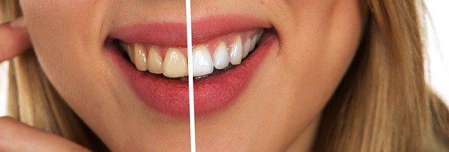 Bleka tänderna